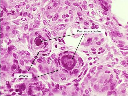 Psammoma Bodies Are Seen In Following Except A Serous Cystadenoma