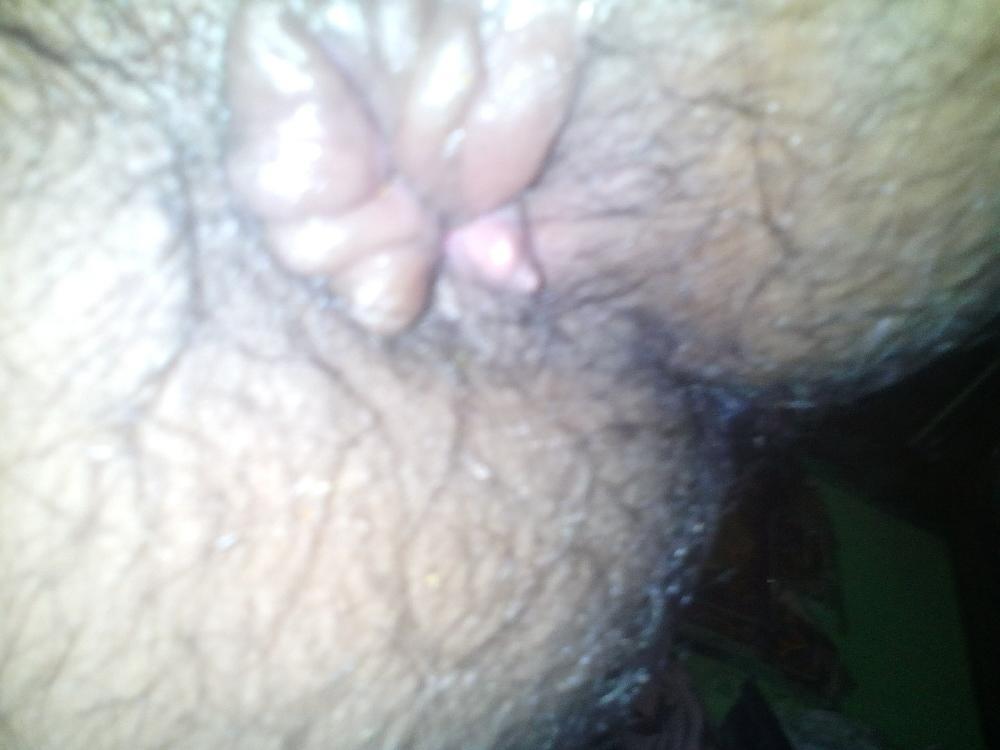 https://media.curofy.com/164913.27b45e2e74db38bbe03429d2df3e4da2.jpg