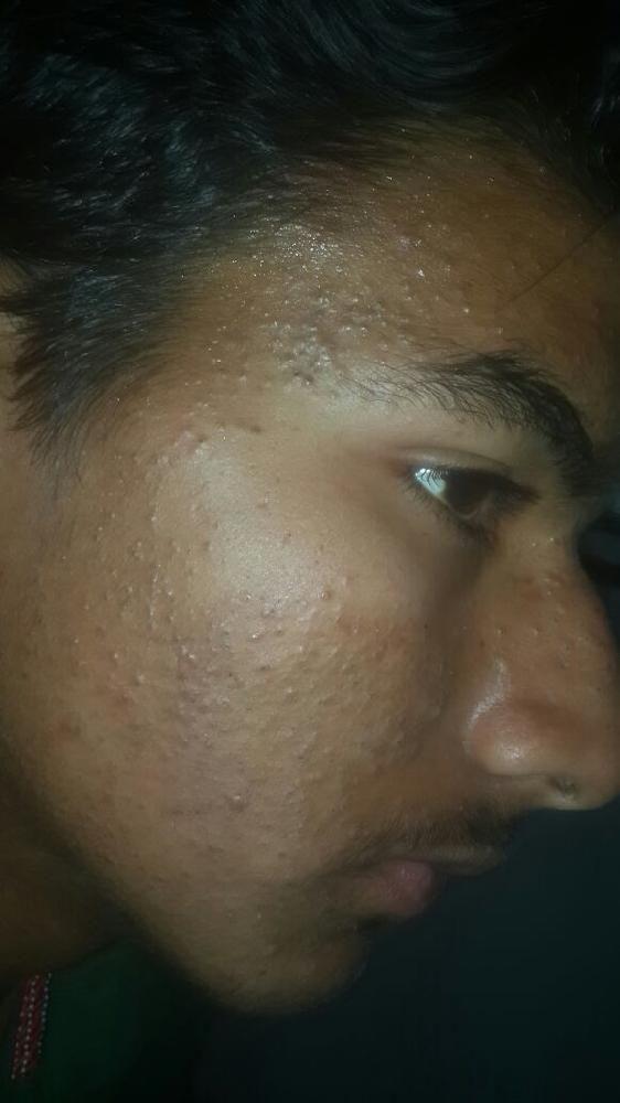 https://media.curofy.com/233563.a969a1246e4be9275eedae8019120d88_2.jpg
