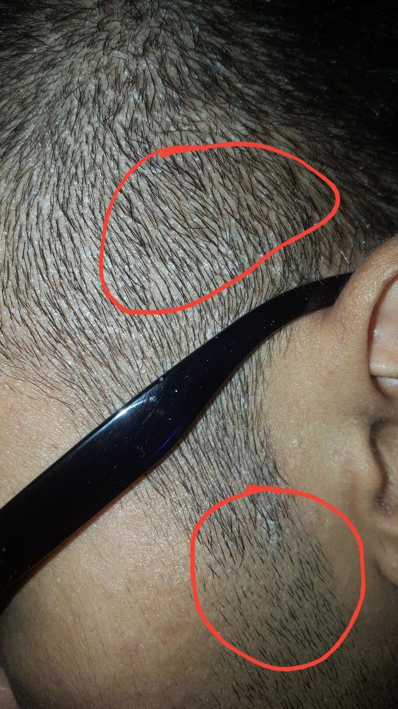 scalp psoriasis treatment nhs pikkelysömör mi ez hogyan kezeljük a népi gyógymódokat