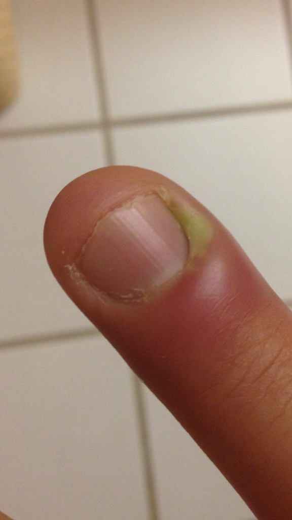 25 y/o female with lesion involving the finger for the last 3 ?