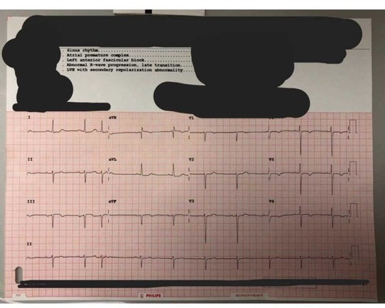 """74F sent from PCP after an """"abnormal EKG after 3 weeks of"""