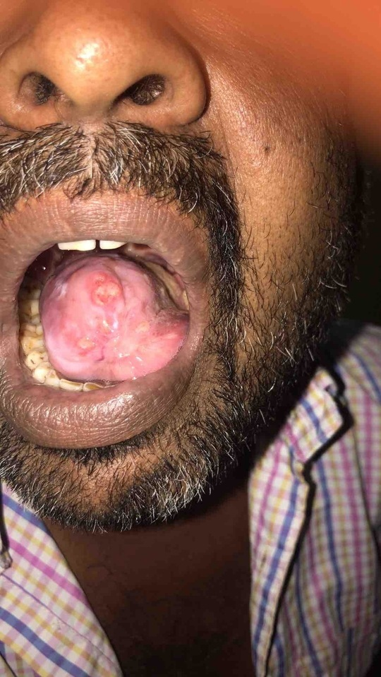 Tongue got operated for tongue ulcer since then for past one ?