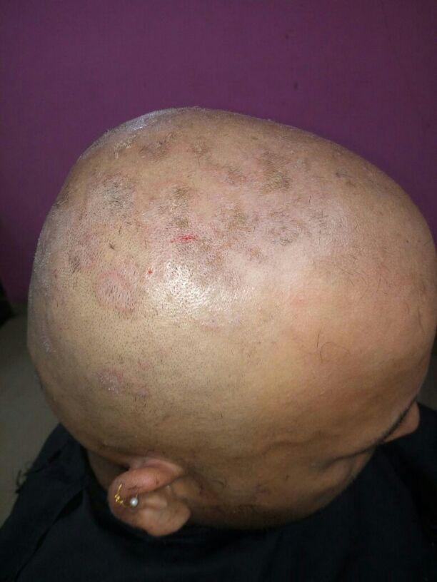 Ambalkar psoriasis - Scalp psoriasis treatment in ayurveda