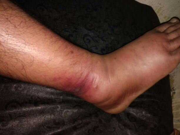 How to treat this cellulitis happen due to injury Non diabetic ?