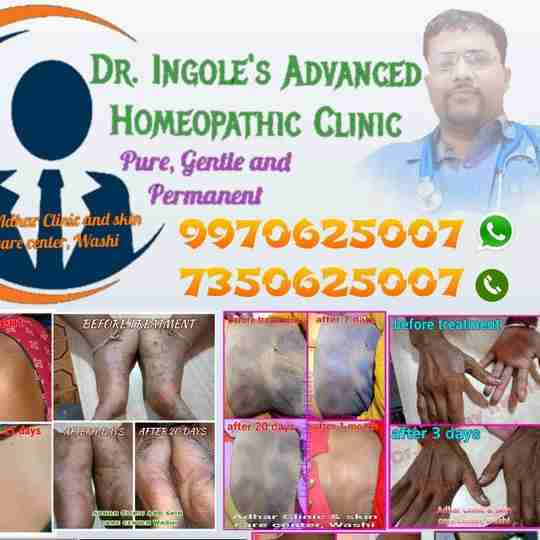 Dr. Akshay Ingole's profile on Curofy