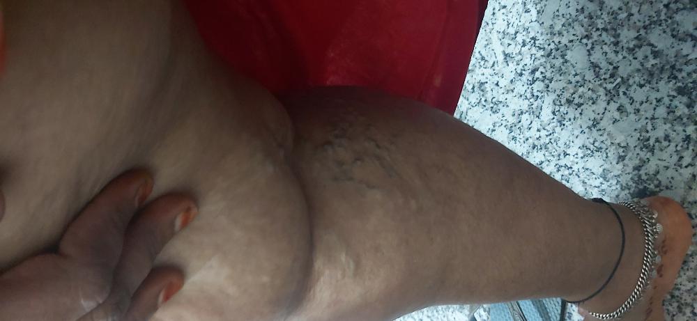https://media.curofy.com/515852.a3c896c6dc8405e387db4f755960ee7a.jpg
