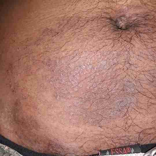 Dr. Pundalik Wader's profile on Curofy