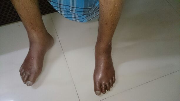 87 year old patient c/o pain in Left dorsum of foot since